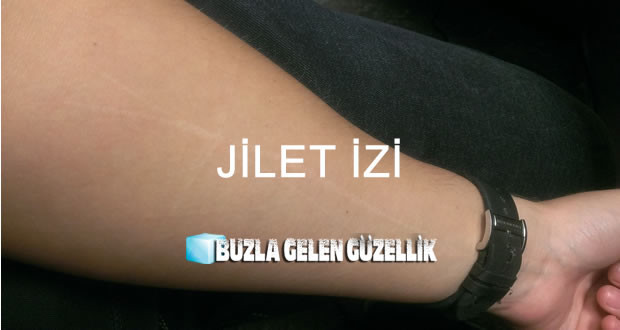 jilet-izi-giderme-a1